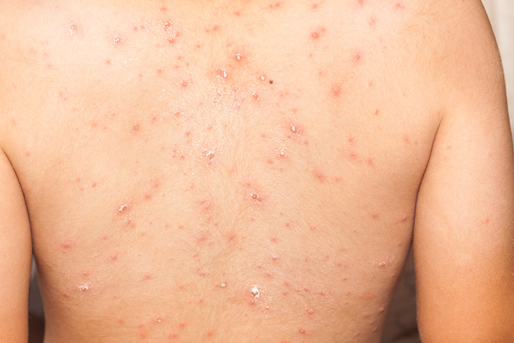 Shingles and Chickenpox