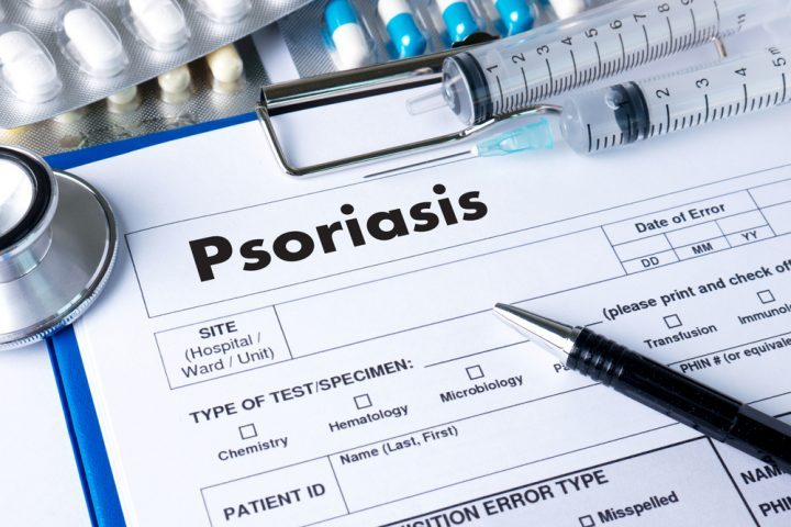 Symptoms of Plaque Psoriasis