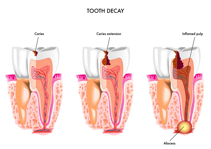 7 Common Terms to Know About Tooth Decay