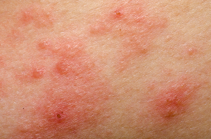 Treating Atopic Dermatitis