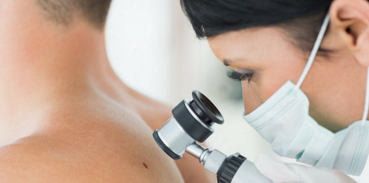 Treating Melanoma