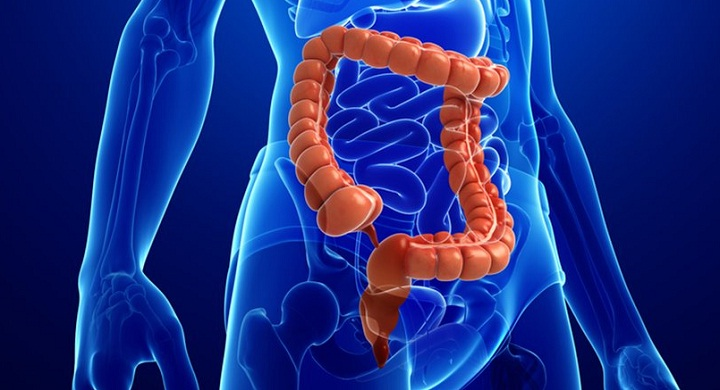 What Causes Colon Cancer